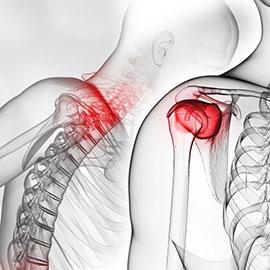 Colonne cervicale et épaule